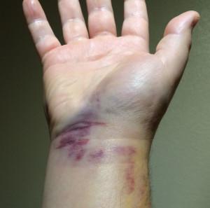 Wrist-Bruised